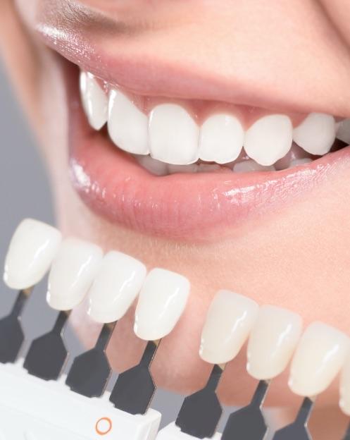 dentista portgruaro: bocca sorridente con faccette estetiche