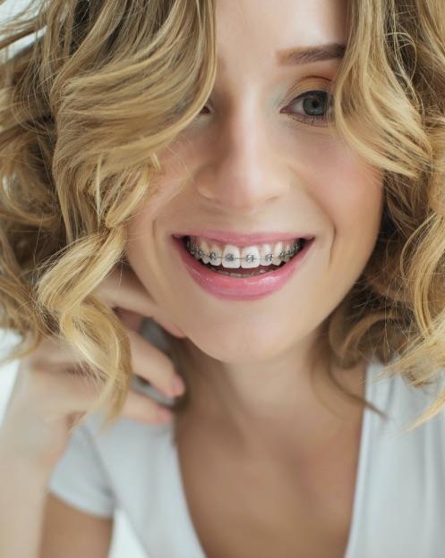 dentista portogruaro: ragazza bionda con apparecchio
