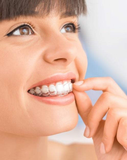 dentista portogruaro: ragazza sorridente con frangetta e mascherina trasparente