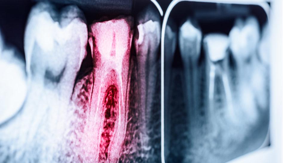 endodonzia significato