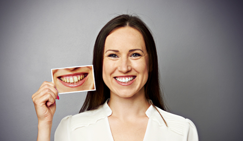 sbiancamento denti dentista