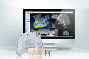 implantologia dentale computer guidata